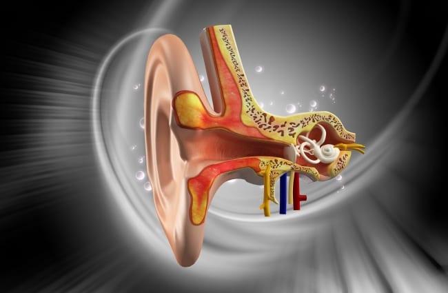 Vestibular Migraines picture