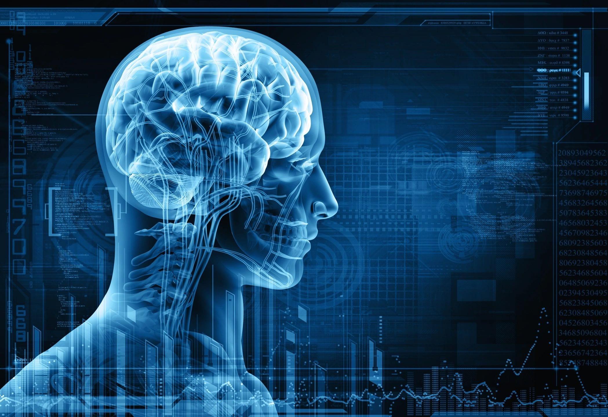 brain xray type graphic